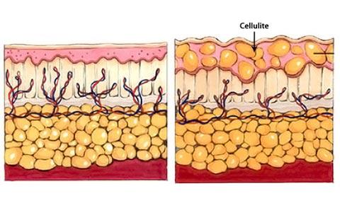 سلولیت و چاقی موضعی