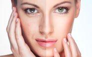 5راه برای کاهش چین و چروک پوست صورت