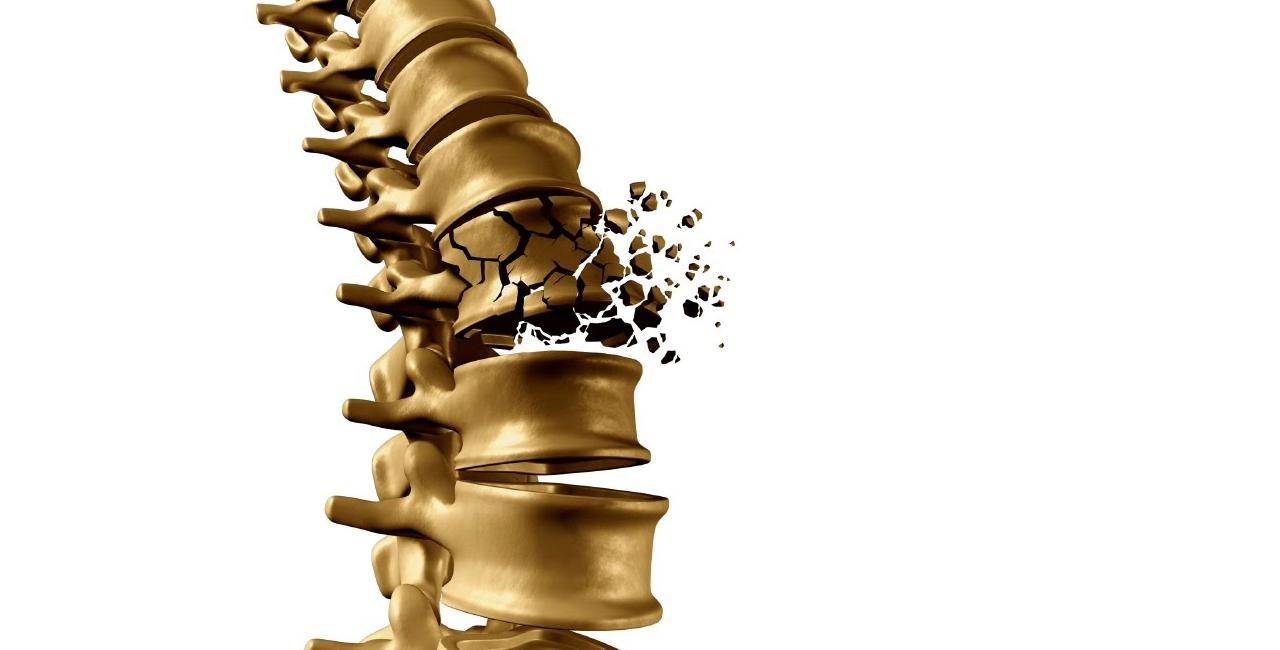 مهم ترين عارضه پوکی استخوان، شکستگی است - رژیم لاغری - کاهش وزن