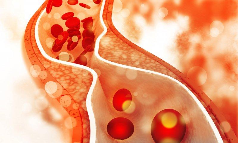 کاهش چربی خون - رژیم لاغری - کاهش وزن