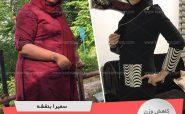 رکورددار کاهش وزن رژیم دکتر کرمانی