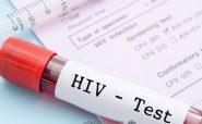 آنچه باید درباره HIV و ایدز بدانید
