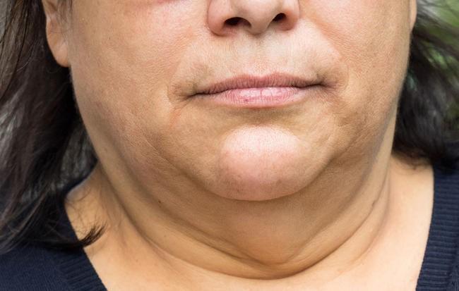 چگونه چاق شدن صورت را به حداقل برسانیم؟
