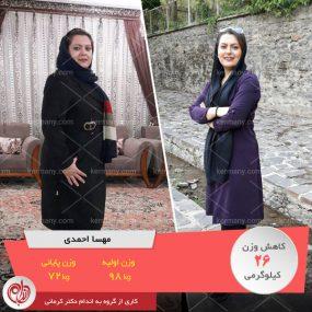 مهسا احمدی رکورددار کاهش وزن رژیم آنلاین دکتر کرمانی