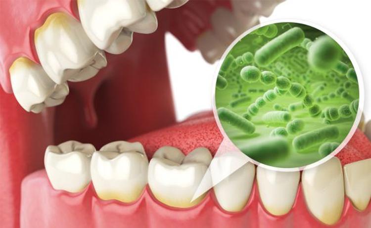 چای سفید و لاغری - باکتری های موجود در دهان