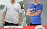 ابوذر علیپور- رکورددار کاهش وزن دکتر کرمانی