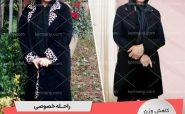راحله خصوصی -رکورددار کاهش وزن دکتر کرمانی