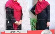 ریحانه جوادی - رکورددار کاهش وزن دکتر کرمانی