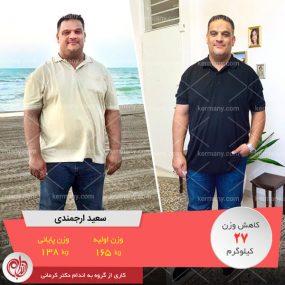 سعید ارجمندی - رکورددار کاهش وزن دکتر کرمانی