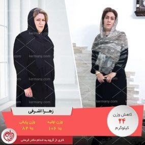 زهرا اشرفی ؛ رکورددار کاهش وزن رژیم دکتر کرمانی