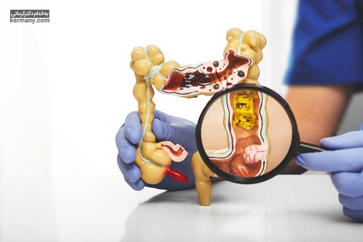 دیدن خون در مدفوع یکی از علایم کولیت روده است