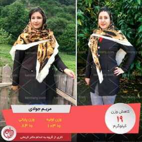 مریم جوادی - رکورددار کاهش وزن دکتر کرمانی