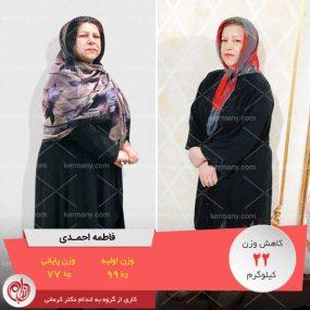 فاطمه احمدی - قهرمان کاهش وزن رژیم آنلاین دکتر کرمانی