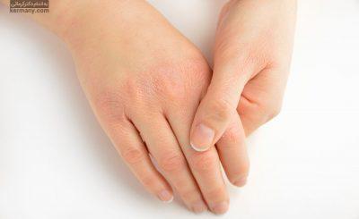 جلوگیری از خشکی پوست