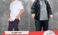 مصاحبه با آقای حمید علوی، رکورددار رژیم لاغری دکتر کرمانی با 80 کیلو کاهش وزن   وزن اولیه: 159 کیلو؛ وزن نهایی: 79 کیلو