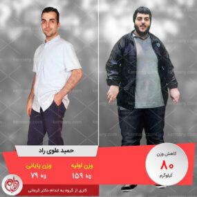 مصاحبه با آقای حمید علوی، رکورددار رژیم لاغری دکتر کرمانی با 80 کیلو کاهش وزن | وزن اولیه: 159 کیلو؛ وزن نهایی: 79 کیلو