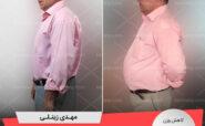 مصاحبه با آقای مهدی زینلی، رکورددار رژیم لاغری دکتر کرمانی با 17 کیلو کاهش وزن   وزن اولیه: 112 کیلو؛ وزن نهایی: 95 کیلو