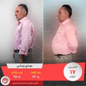 مصاحبه با آقای مهدی زینلی، رکورددار رژیم لاغری دکتر کرمانی با 17 کیلو کاهش وزن | وزن اولیه: 112 کیلو؛ وزن نهایی: 95 کیلو