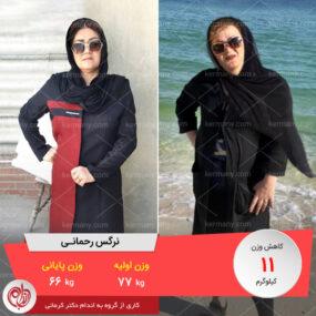 مصاحبه با خانم نرگس رحمانی، رکورددار رژیم لاغری دکتر کرمانی با 11 کیلو کاهش وزن | وزن اولیه: 77 کیلو؛ وزن نهایی: 66 کیلو