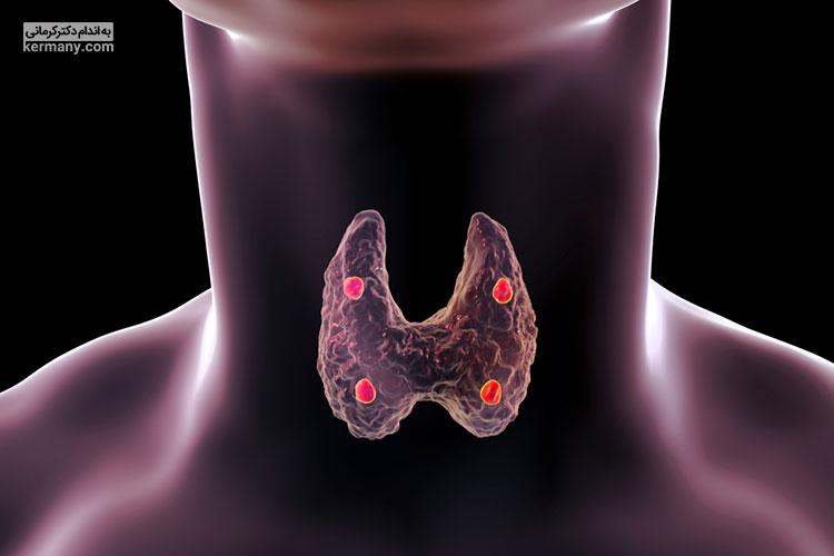 اختلالات هورمونی زمانی رخ می دهند که غدد درون ریز بدن کار خود را به درستی انجام ندهند.
