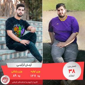 مصاحبه با آقای آرمان گرگینی، رکورددار رژیم لاغری دکتر کرمانی با 38 کیلو کاهش وزن | وزن اولیه: 127 کیلو؛ وزن نهایی: 89 کیلو